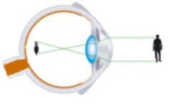 Eye defects:three defects of the eye - myopia, hyperopia ...